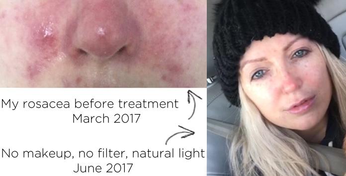 perfect skincare routine rosacea