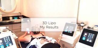 3d lipo results before after